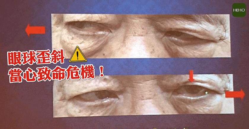 書田診所黃啟訓醫師:無症狀出現眼球歪斜,當心致命危機