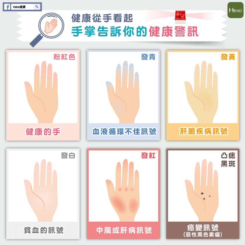 健康從手看起!手掌告訴你的健康警訊
