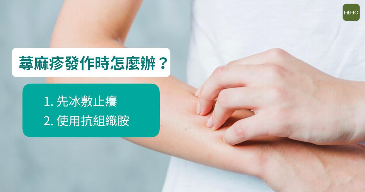 蕁麻疹總在放鬆後?發作時這樣做可緩解搔癢